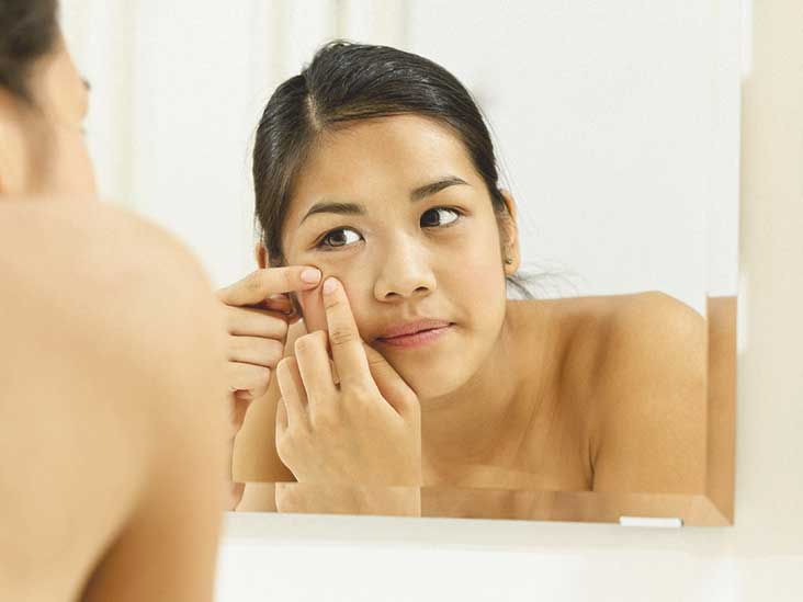 Acne adult natural treatment apologise